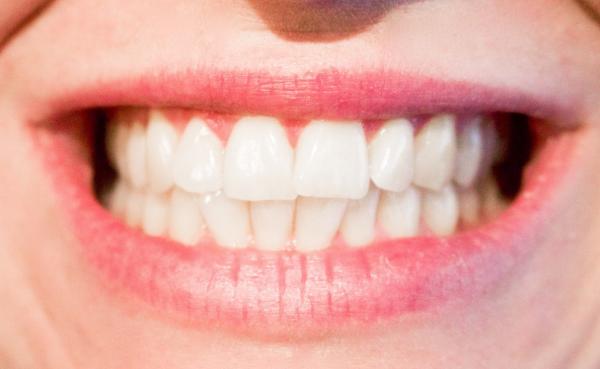 偏振光显微镜下 牙齿记录了你的生命轨迹
